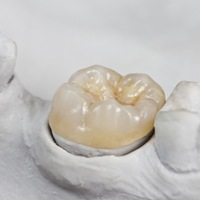 Model tooth with dental crown