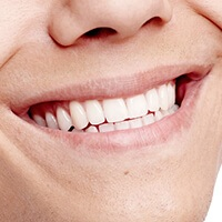 person with white teeth smiling